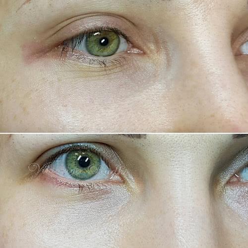 татуаж темных кругов под глазами