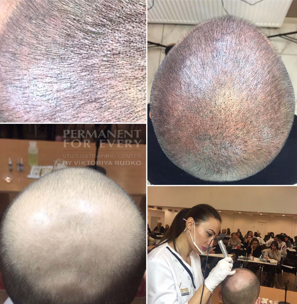 трихопигментация - татуаж головы до и после