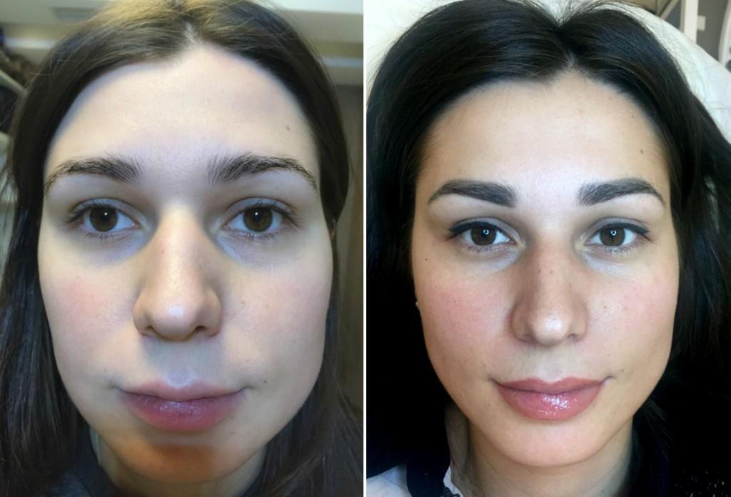 Как свести перманентный макияж бровей