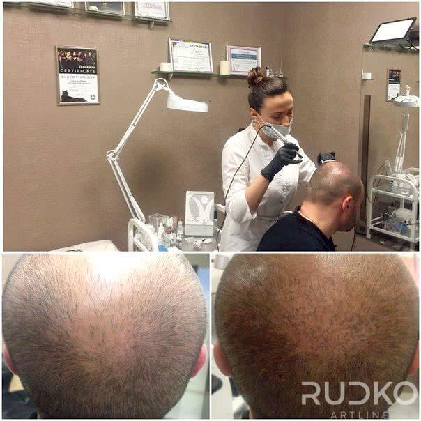трихопигментация имитация волос киев