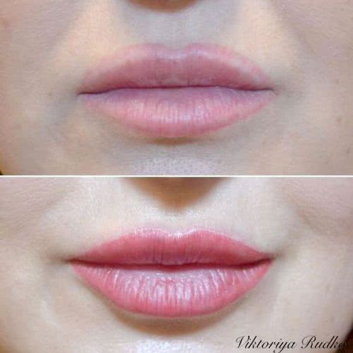 исправление губ татуаж киев
