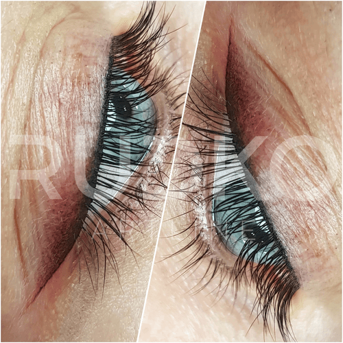 Shading technique is recommended as the main option for anti-aging permanent makeup