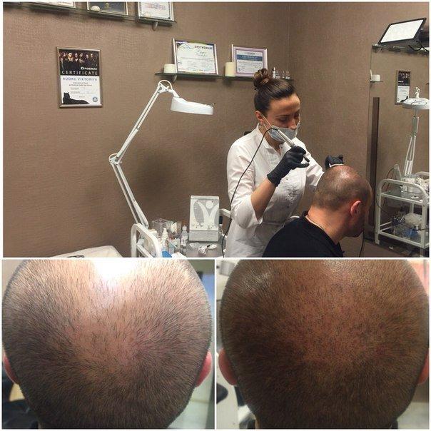 Трихопигментация или имитация волос