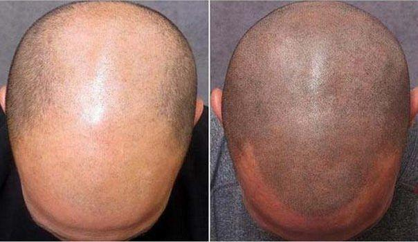 Альтернатива пересадке волос — трихопигментация