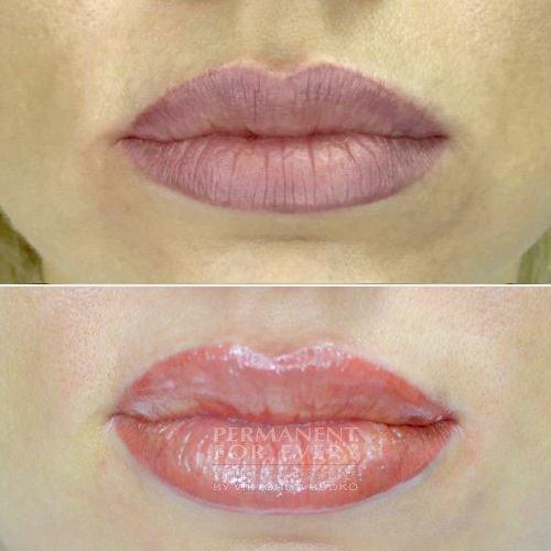 исправление татуажа фиолетовые губы