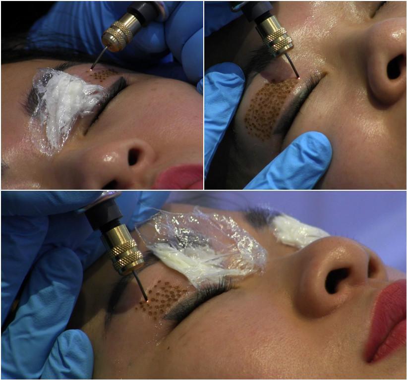 процедура фибробласт