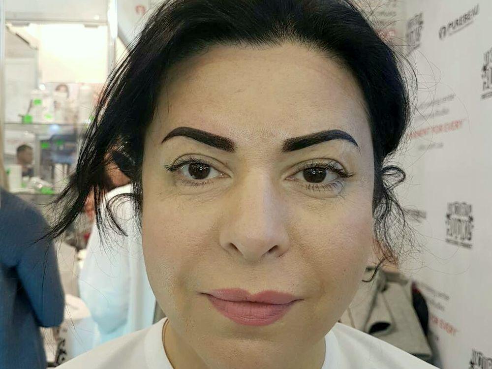 лазерное удаление волос в зоне бикини цена