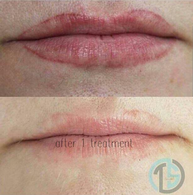 удалить татуаж губ быстро