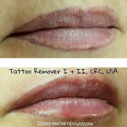 удаление татуажа губ ремувером