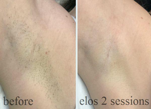 Вы видите как эстетично выглядит подмышечная впадина клиентки уже после 2-х процедур. Если вас раздражают эти черные точки после бритья, элос эпиляция - это то, что способно быстро исправить ситуацию!
