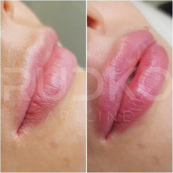 augmentation of lips with a phleloa
