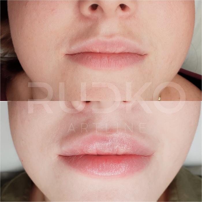 филлеры до и после фото киев губы