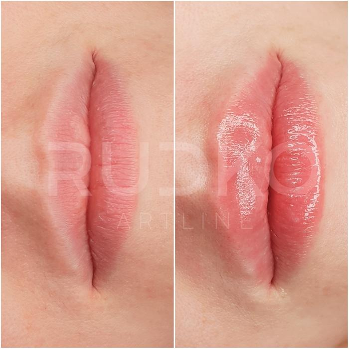 увеличение губ филлерами киев фото