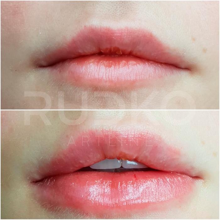коррекция асимметрии губ филлером стилейдж